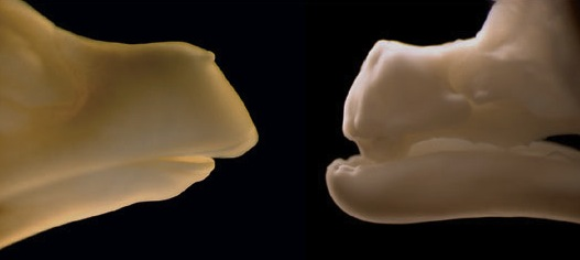 Chicken embryo showing tooth development